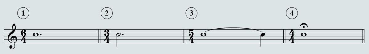 Segni di prolungamento del suono